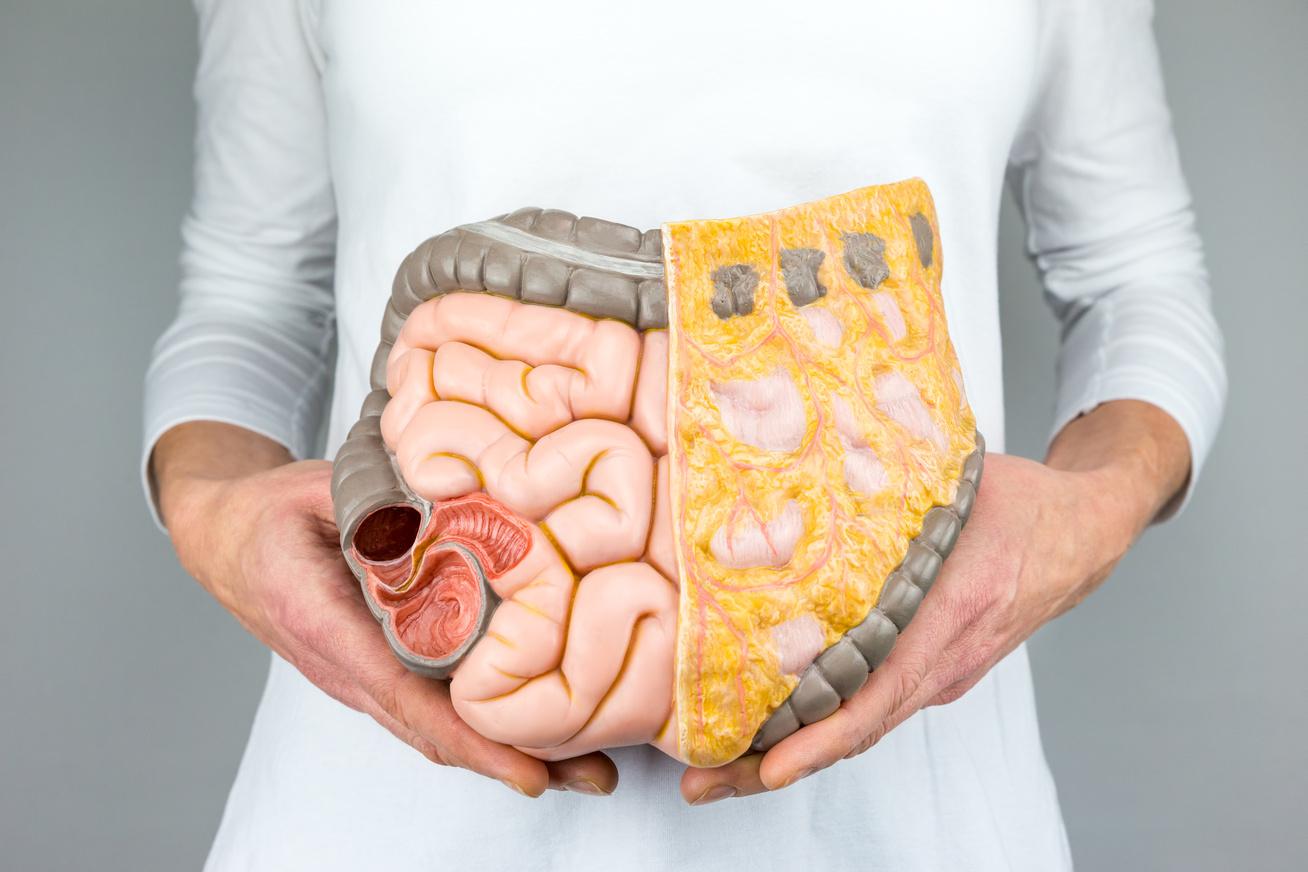 lehetséges-e a zsír visszavesztése otthon fogyás rutin