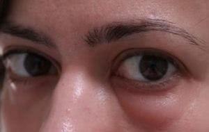 hogyan lehet egy szem tamponot venni)