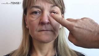hogyan lehet elveszíteni a szem alatti zsír