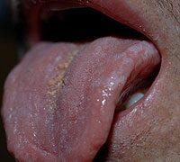 fogyás tünetei hiv