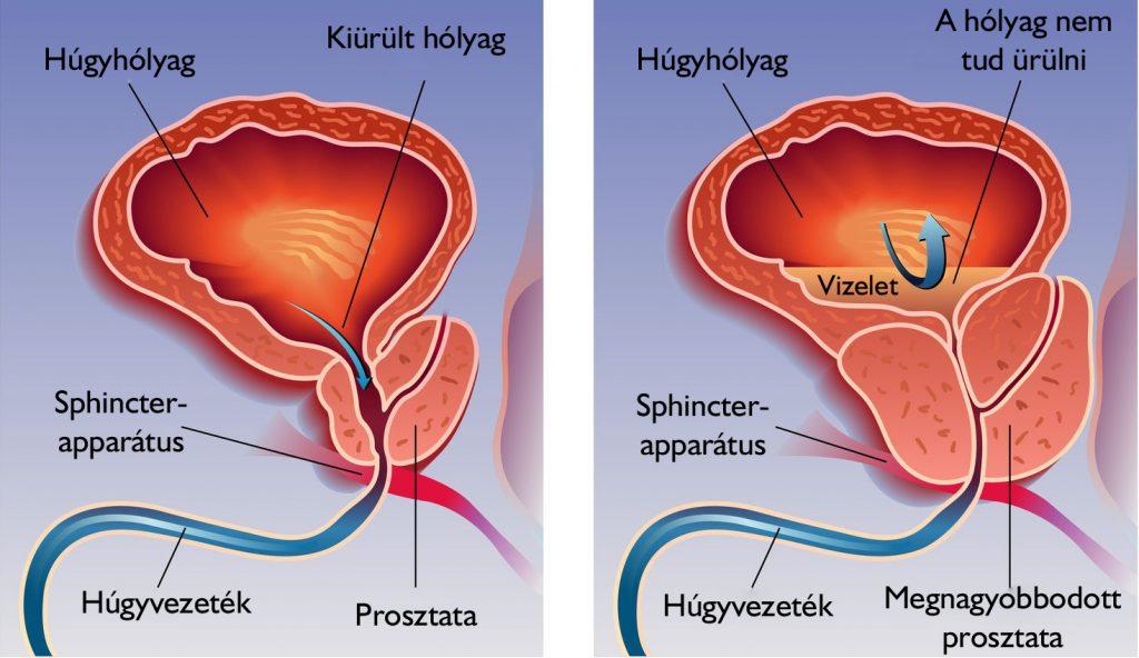 súlycsökkenés és bél inkontinencia hogyan lehet gyorsan elveszíteni a zsírt a hasától