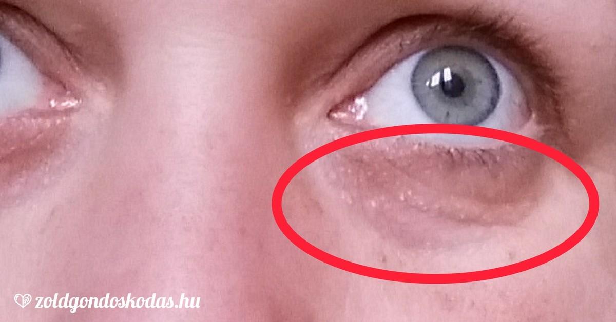hogyan lehet eltávolítani a szemhéj zsírját megmagyarázhatatlan fogyás és ingerlékenység
