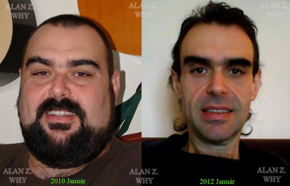Így változik az arc fogyás után