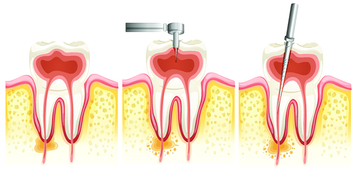 fogyjon és combrést kapjon egyensúlyozd a ph-t a fogyás érdekében