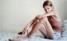 heti bulimia fogyás hogyan lehet jól fogyni 22. jan