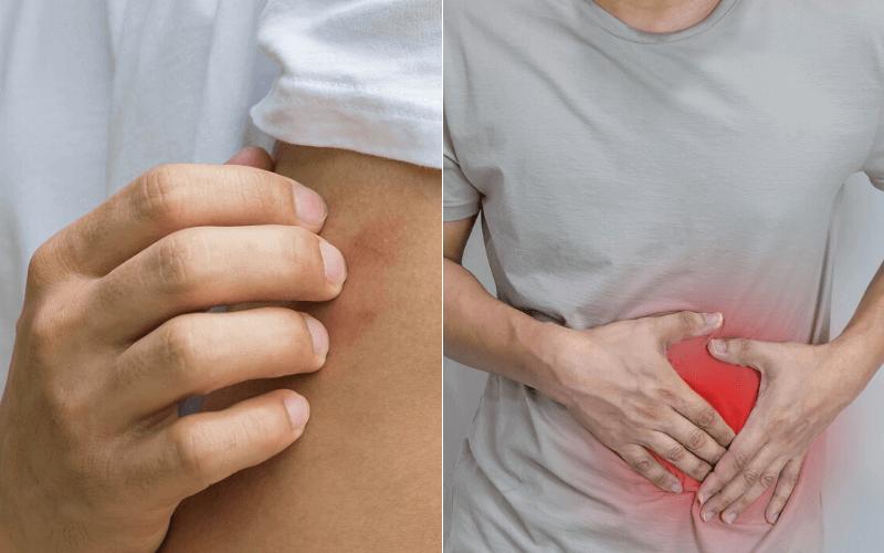 Autoimmun eredetű sokízületi gyulladás (PCP)